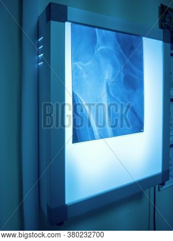 Glowing Negatoscope With X-ray Of Femur Fracture And Pelvic Bones