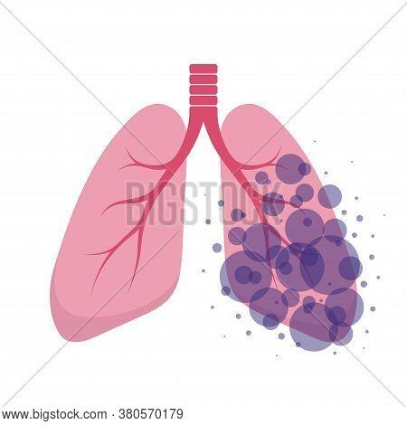 Affected Human Lungs. Internal Organs Of The Human Design Element