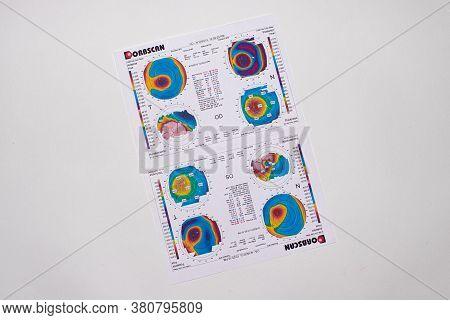 25.07.2020, Zarorizhzhya. Topography Of The Cornea Of The Eye, Layout. Keratoconus Of The Right Eye