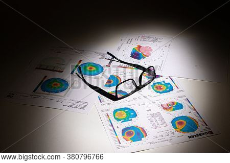 25.07.2020, Zarorizhzhya. Topography Of The Cornea Of The Eye, Layout. Keratoconus And Glasses. Kera