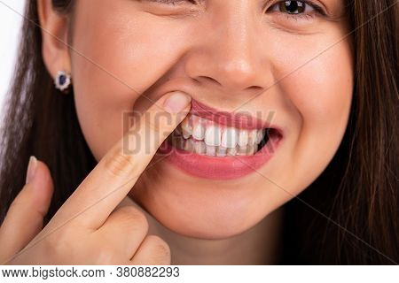 Young Beautiful Woman Touches Her Teeth On The Upper Jaw With Her Finger, Showing A Problem With The