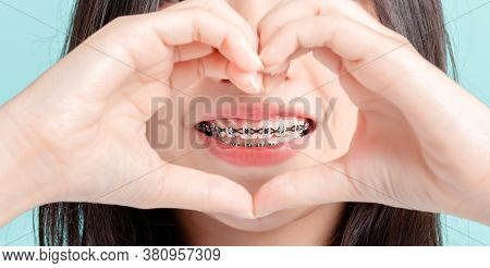 Close Up Lover Dental Braces Of Young Asian Woman Wearing Braces Beauty Smile With White Teeth Incre