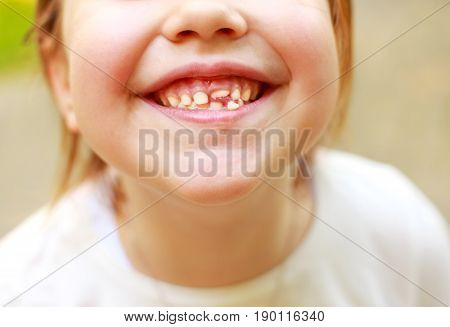 Loss of milk tooth. baby smile close.