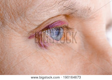 Injured Eye Due To Capillary Rupture