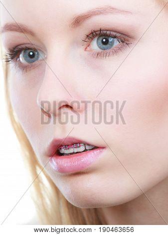 Woman Showing Her Braces On Teeth