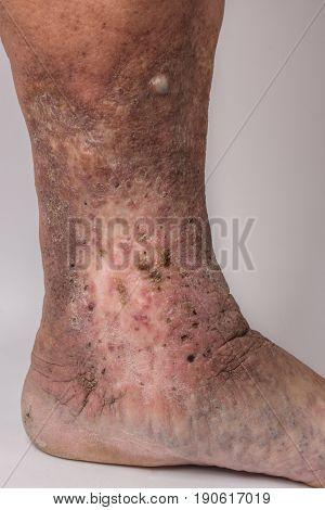 Feet Old Woman Patient With Varices On A White Background