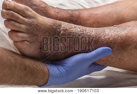 Doctor Examines The Leg Old Female Patient For Varicose Veins