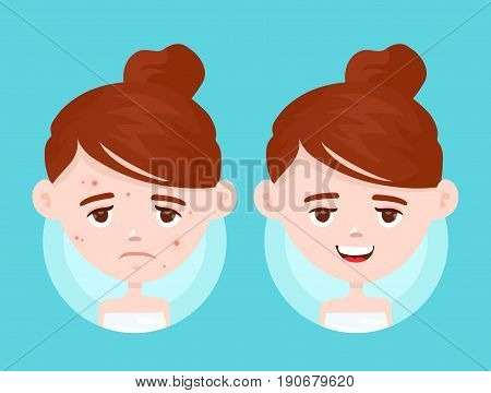 Acne infographic. Vector modern flat style cartoon character illustration. Isolated on blue background. Unhappy teen girl struggling with acnepimples. Skin face problem concept. Before and after