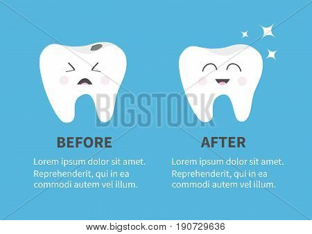 Healthy smiling tooth icon. Shining star. Crying bad ill teeth with caries. Before after Infographic Template with text. Cute character. Oral dental hygiene. Baby background. Flat design. Vector