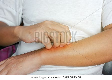 Person scratching at itchy skin on their arms - closeup
