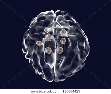 Multiple cryptococcal cysts in brain, cryptococcoma, 3D illustration