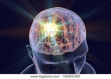 Destruction of brain tumor, 3D illustration. Conceptual image for brain cancer treatment