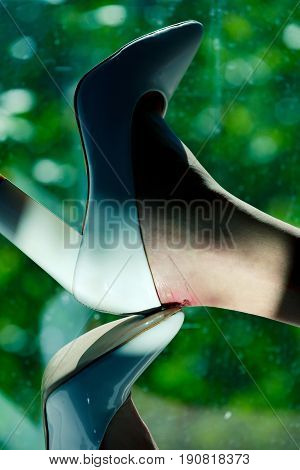 Shoe With High Heel And Female Leg With Wound
