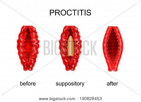 vector illustration of proctitis. before and after treatment of rectal suppositories