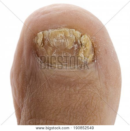 Close up image of right foot toe nail suffering from fungus infection isolated on white background.