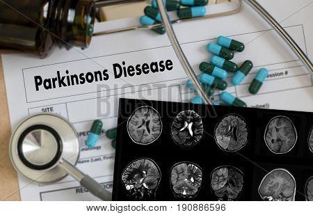 Parkinsons Disease Doctor Hand Working Professional Doctor