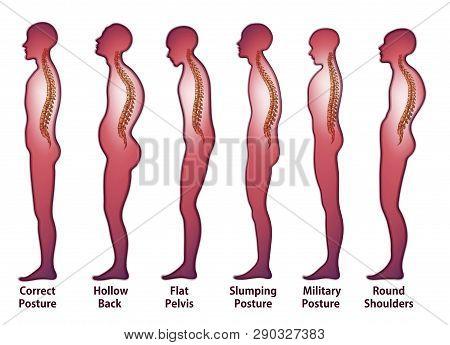 Skeleton_spine (posture)