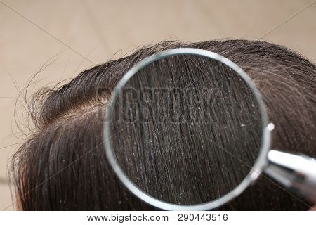 Closeup of woman with dandruff in her hair, view through magnifying glass poster