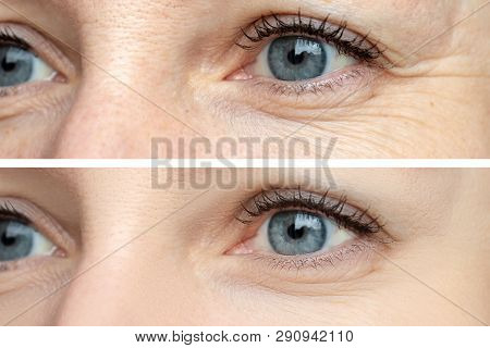 Woman Face, Eye Wrinkles Before And After Treatment - The Result Of Rejuvenating Cosmetological Proc