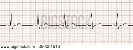 Vector Cardiogram Or Pulse On A Dark Background. Heartbeat Electrocardiogram. Vector Illustration