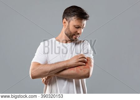 Dermatitis, Eczema, Allergy, Psoriasis Concept. Annoyed Middle-aged Man In White T-shirt Scratching