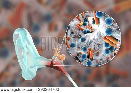 Otitis Media, An Inflammatory Disease Of The Middle Ear, And Close-up View Of Bacteria, The Causativ