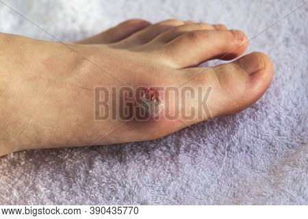 Diabetes Mellitus Of The Foot. Infected Wound, Treatment Of A Diabetic Patients Leg Infection. Selec