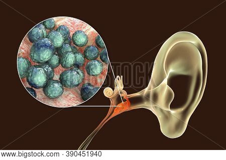 Otitis Media Caused By Bacteria Staphylococcus Aureus, An Inflammatory Disease Of The Middle Ear, 3d