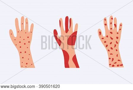 Skin Allergy Set. Hands Covered Red Rash And Scaling Serious Problems With Psoriasis And Eczema Dest