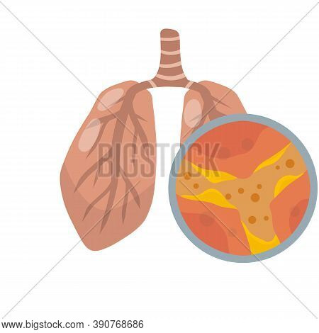 Lung Disease. Blockage Of Canal. Mucus In Alveoli. Breathing Problems.