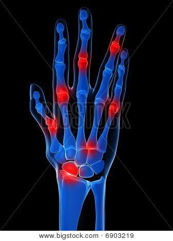 skeletal hands - arthritis