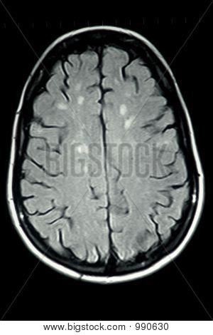 Mri Brain Ms Single View