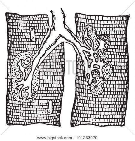 Nerve ending in muscle-fibers, vintage engraved illustration.