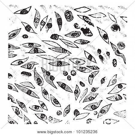Spindle cell sarcoma, vintage engraved illustration.