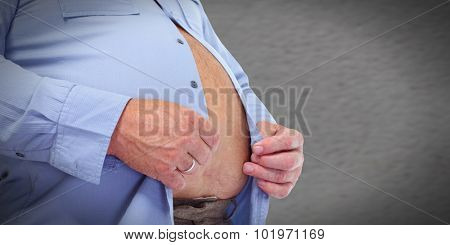 Obese man abdomen. Obesity and weight loss. poster