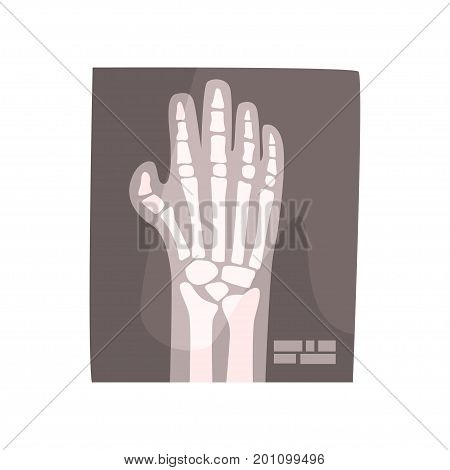 X ray image of human hand cartoon vector Illustration on a white background