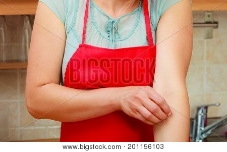 Closeup of woman scratching her itchy arm with allergy rash. Stressed female in kitchen.