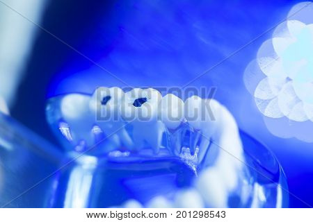 Dental Model Tooth Decay