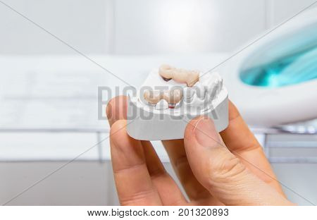 Technical shots of model on a dental prothetic laboratory. Close up.