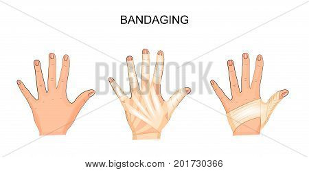 vector illustration of bandaging his hands. surgery