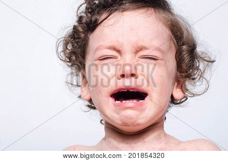 Portrait of a cute sick baby boy crying. Adorable upset child with spots on his face and body form illness mosquito bites roseola rubella measles.