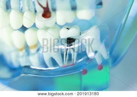 Dental Teeth Dentist Model
