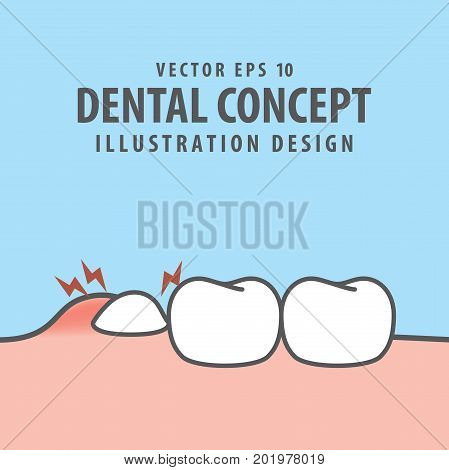 Impacted Tooth Inside Under Inflammation Gum Illustration Vector On Blue Background. Dental Concept.
