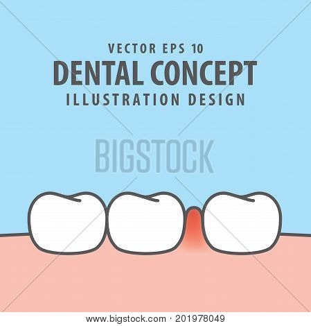 Swollen Inflammation Gums With Teeth Illustration Vector On Blue Background. Dental Concept.