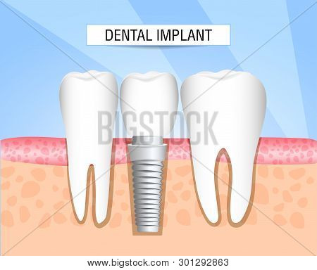 Realistic Dental Implant Structure With All Parts: Crown, Abutment, Screw. Healthy Teeth And Dental