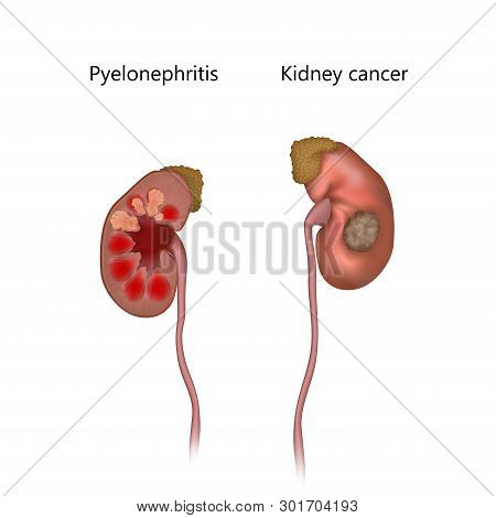 Pyelonephritis Comparison With Cancer. Tumor, Infection, Infected. Realistic Anatomy Vector Illustra