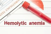 Diagnosis Hemolytic Anemia. Notepad with text labels Hemolytic Anemia, laboratory test tubes for the blood, blood smear for microscopy, and results of laboratory test of blood on table at the doctor poster