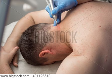 Surgeon Is Removing Many Moles Using Laser On Mans Neck, Body, Burning Skin, Closeup View. One Day S