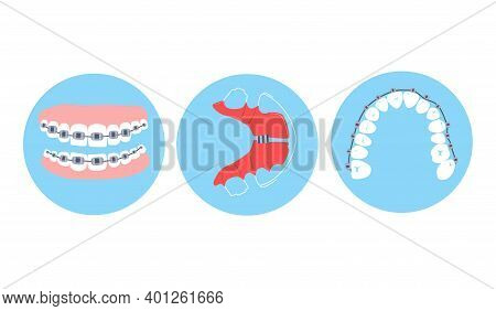 Dental Braces, Aligner Or Orthodontic Metal Retainers On Teeth.oral Care And Daily Routine.bite Corr