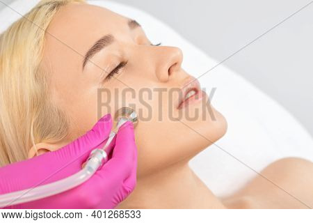 Cosmetologist Makes  Procedure Microdermabrasion On The Face Against Acne And Blackheads Near The Ey